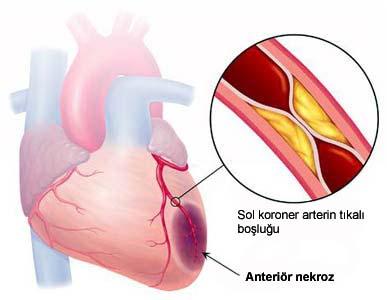 320-jpg.37787 Kalp krizi sonrası anevrizma riski Melekler Mekanı Forum