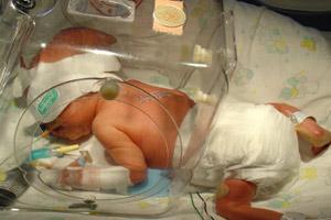 premature-bebek_ (16).jpg