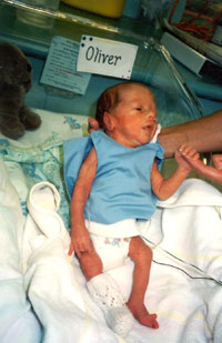 premature-bebek_ (18).jpg