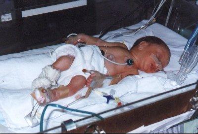 premature-bebek_ (5).jpg