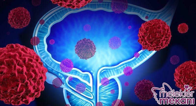prostat kanseri.jpg
